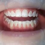 После проведенной профессионнальной гигиены полости рта