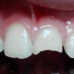 До лечения. Скол переднего зуба